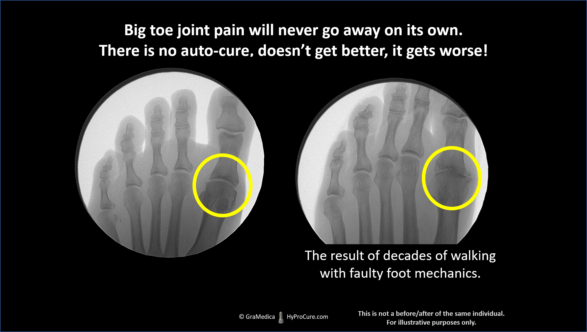 Foot x-ray showing the results of decades of walking with faulty foot mechanics
