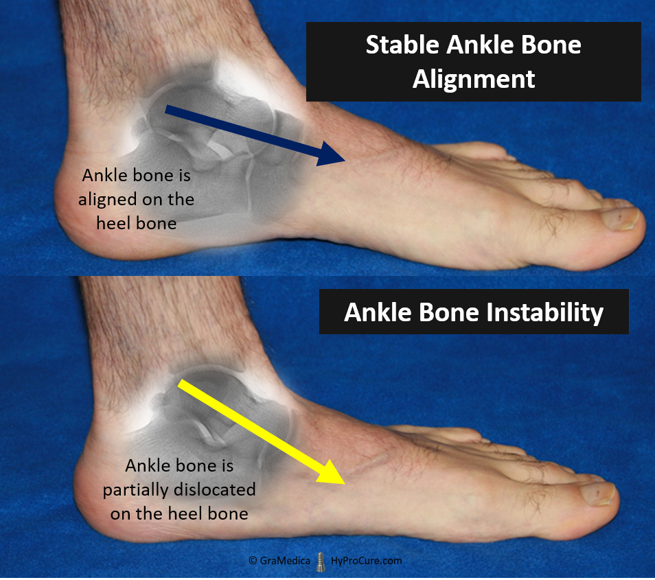 Stable Ankle Bone and Ankle Bone Instability comparison
