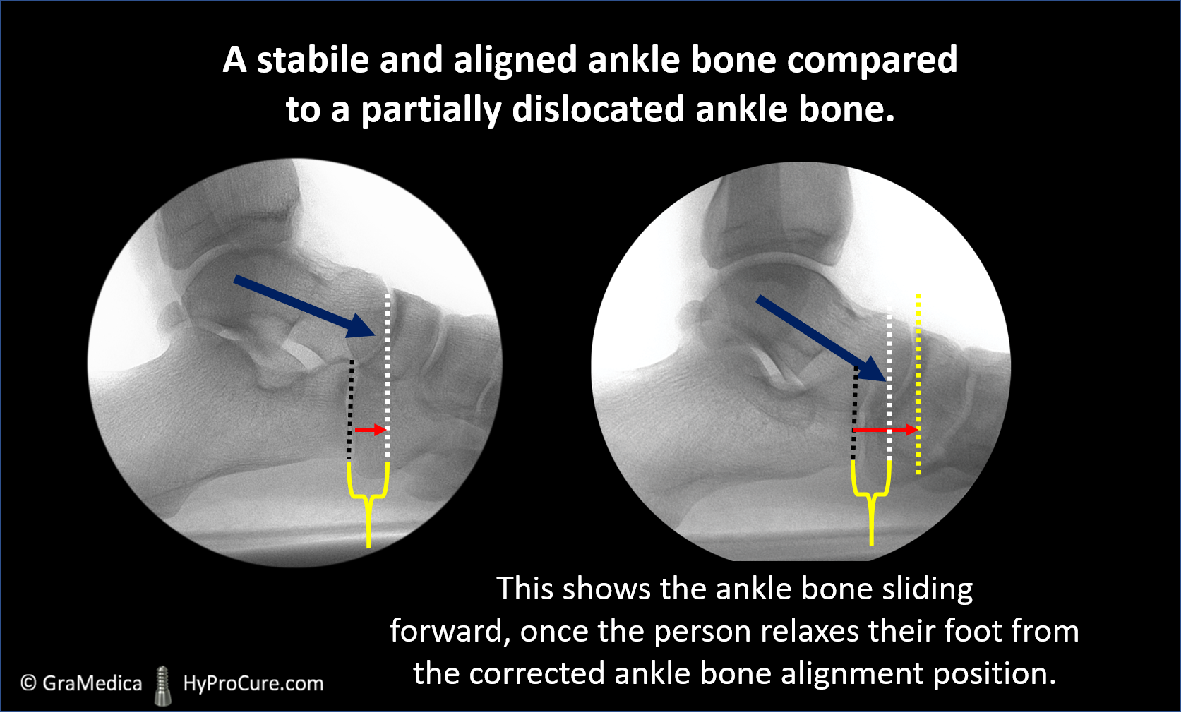 Foot x-ray showing a stabile and aligned ankle bone compared to a partially dislocated ankle bone
