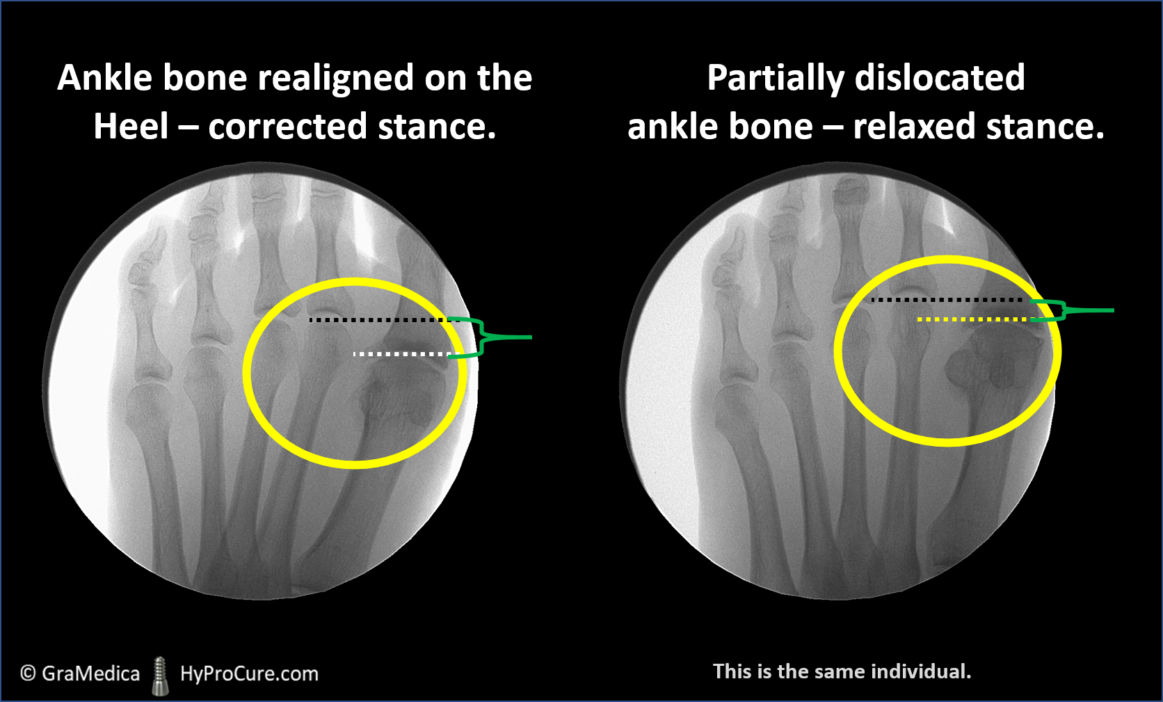 Foot x-ray showing an ankle bone realigned on the heel - corrected stance and a partially dislocated ankle bone - relaxed stance