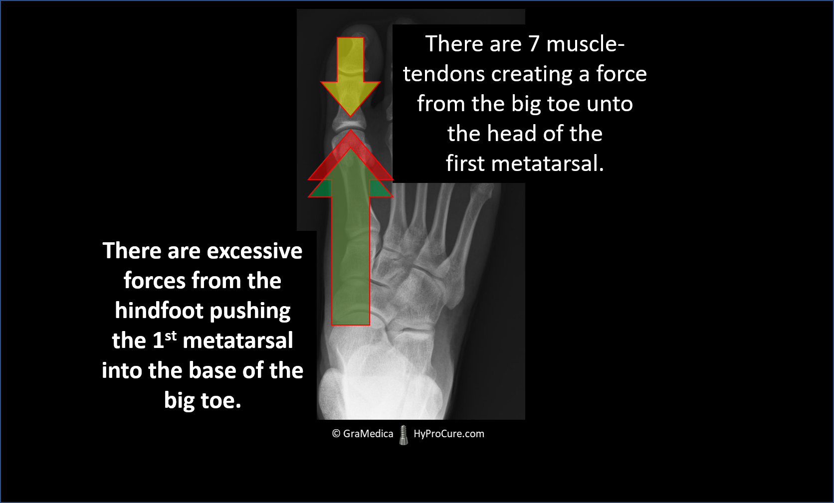 The head of the 1st metatarsal is jamming into the base of the big toe from the excessive ankle bone motion.