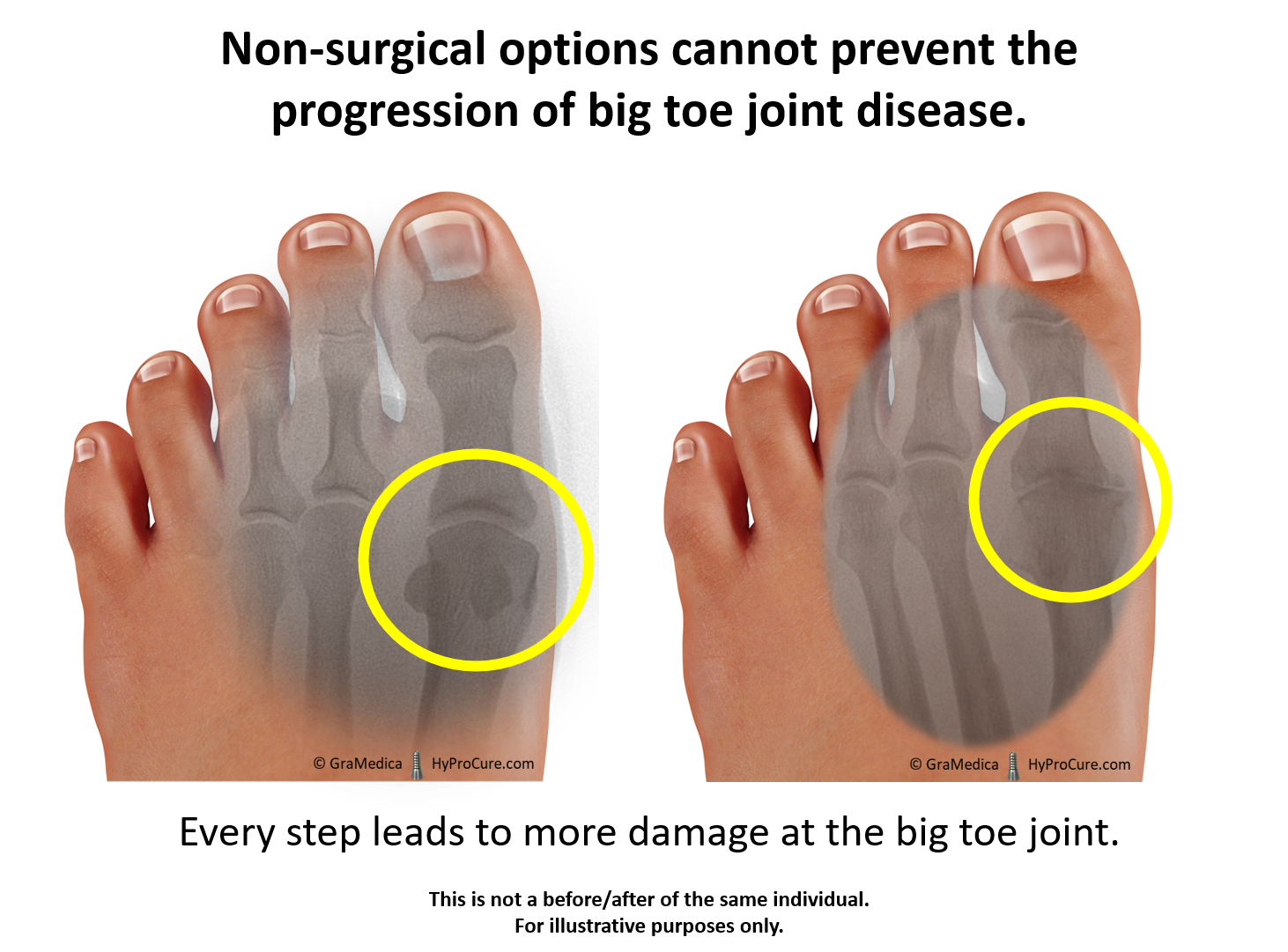 Non surgical options cannot prevent the progression of big toe joint disease