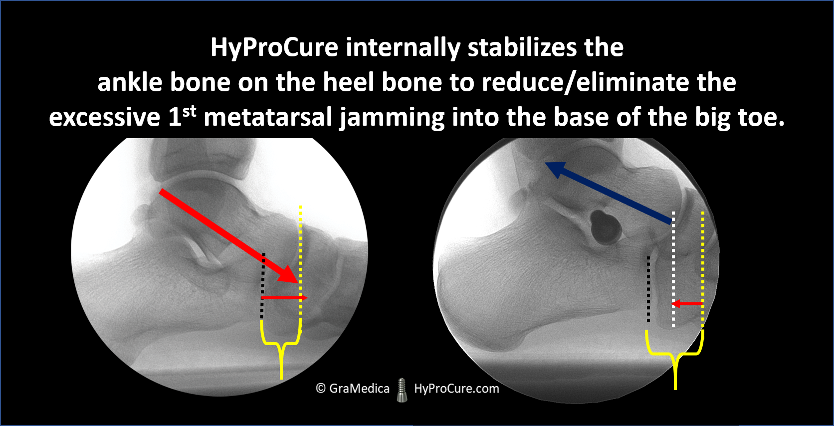 HyProCure internally stabilizes the ankle bone on the heel bone to reduce/eliminate the excessive 1st metatarsal jamming into the base of the big toe