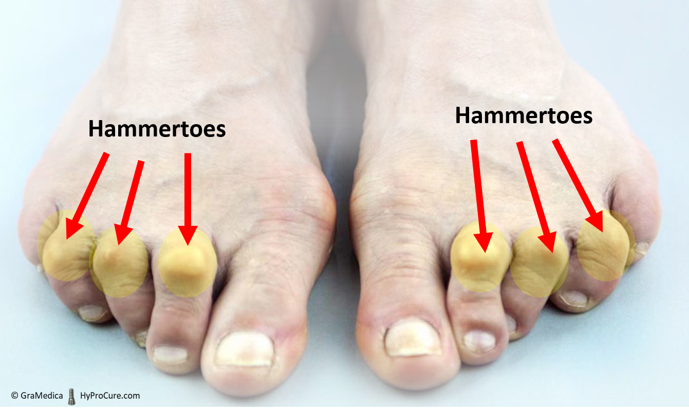 two feet with advanced hammertoes