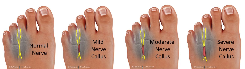 Feet with normal nerve, mild nerve callus, moderate nerve callus, severe nerve callus
