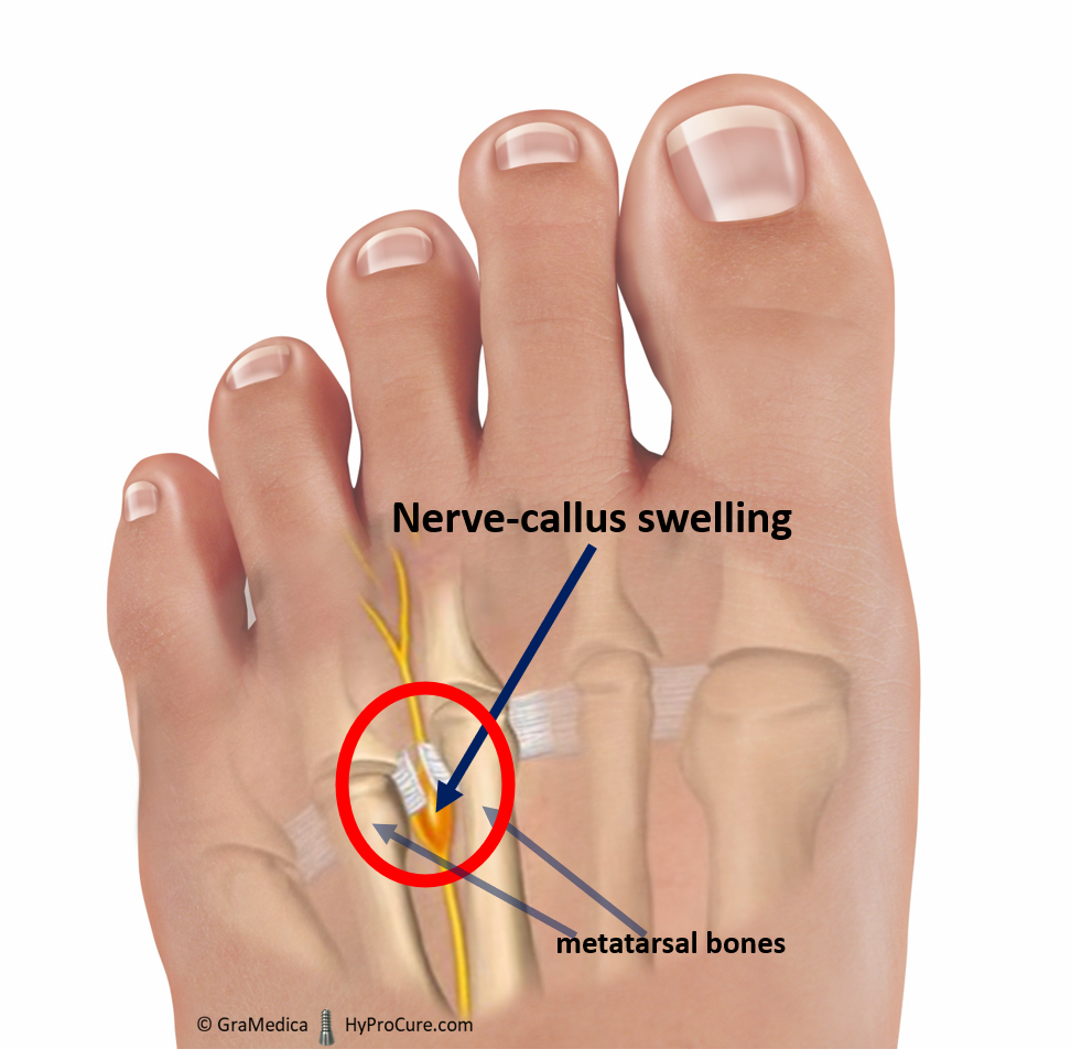 foot with visible nerve-callus and swelling metatarsal bones