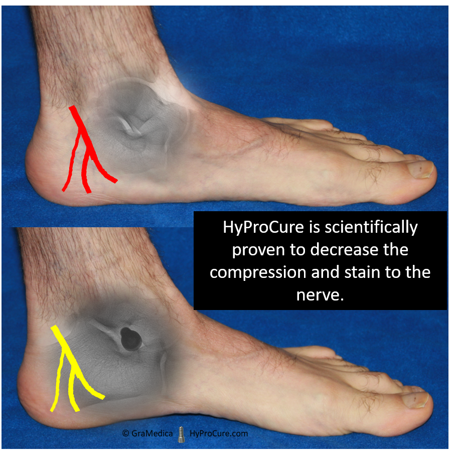 HyProCure decrease the compression and stain to the nerve