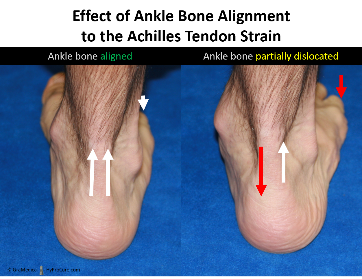Effect of ankle bone alignment to the Achilles tendon strain