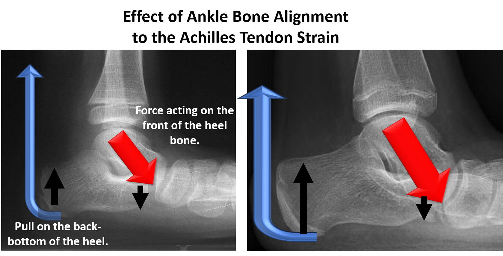 Force acting on the front of the heel bone