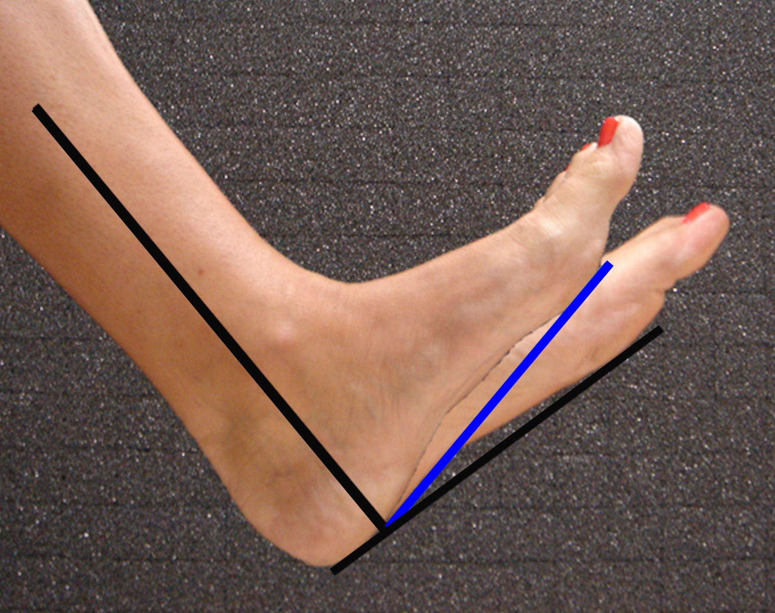 Equinus foot