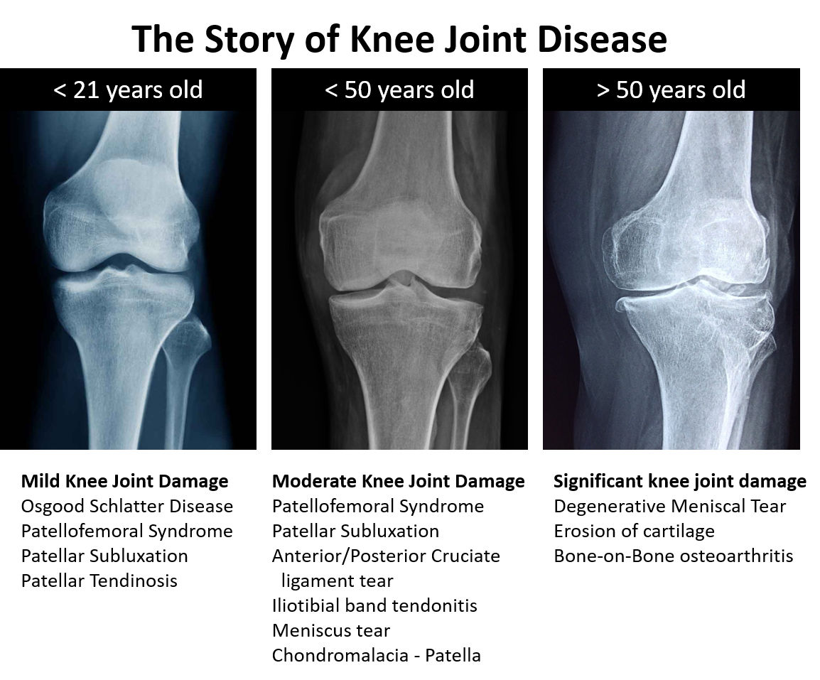 The story of knee joint disease. 21 years old, 50 years old, over 50 years old
