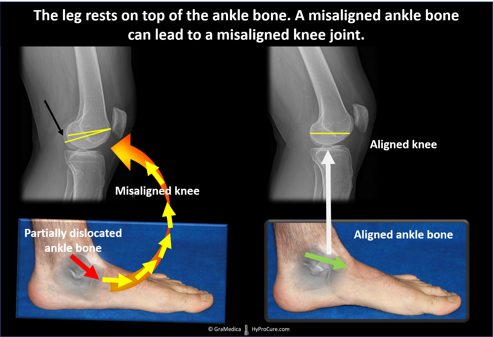 A misaligned ankle bone can lead to a misaligned knee joint