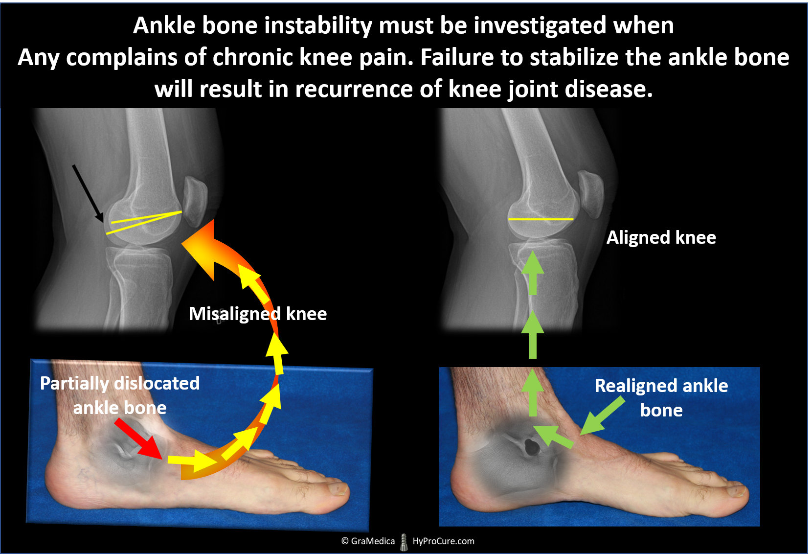 Misaligned knee - partially dislocated ankle bone, Aligned knee - realigned ankle bone