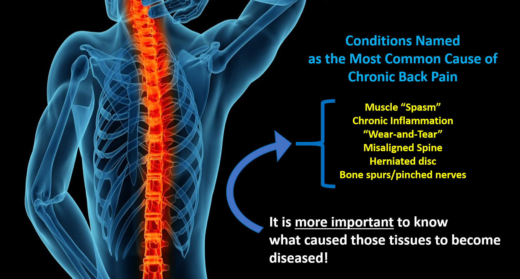 The most common cause of chronic back pain