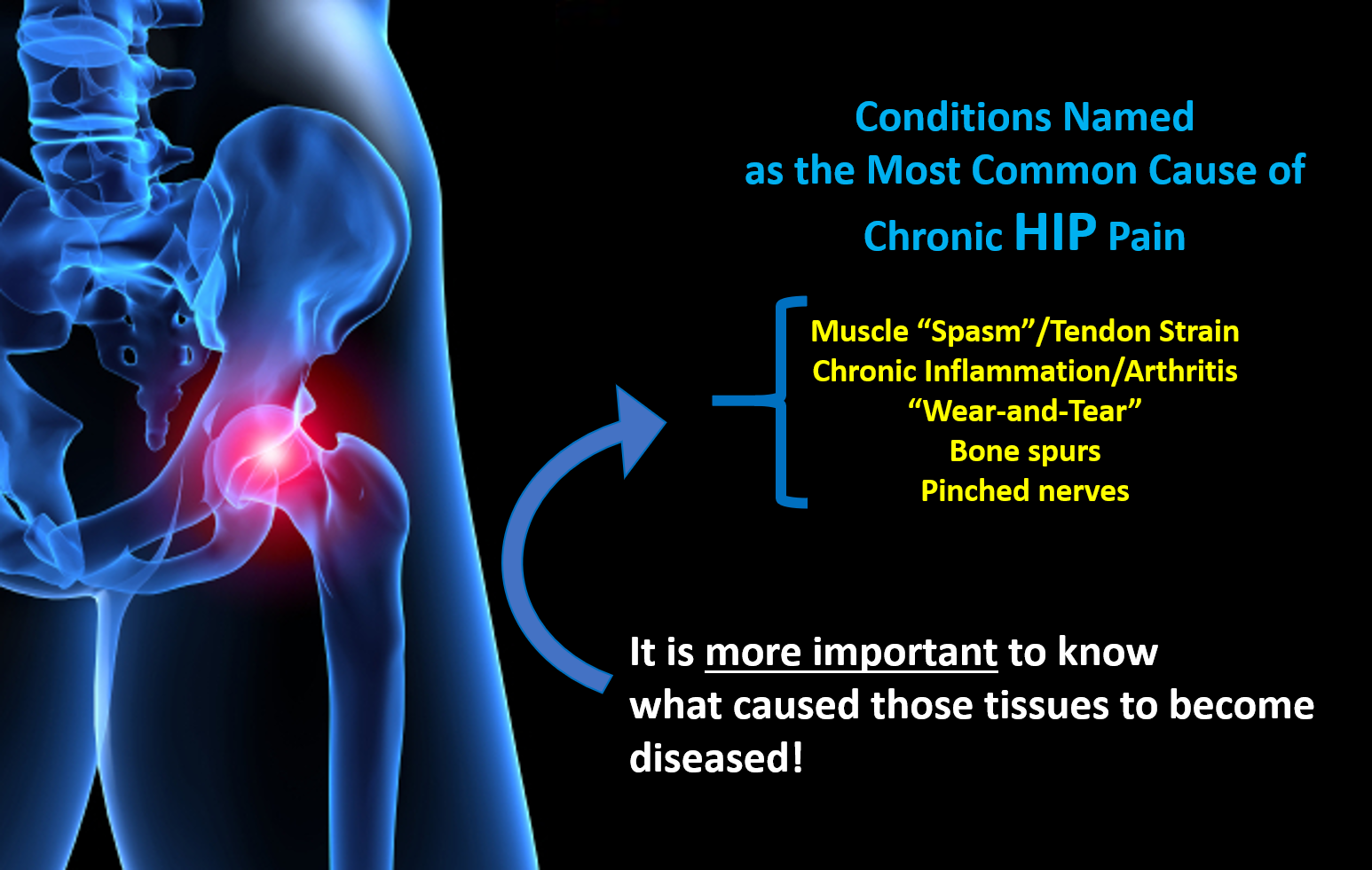 Most common cause of chronic hip pain