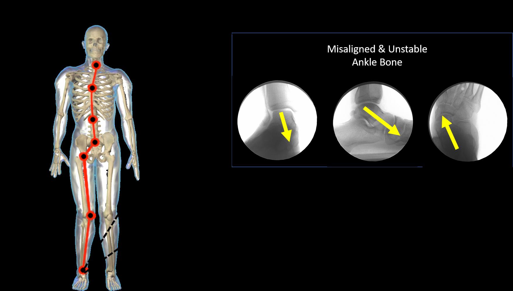 Spine strain misalignment