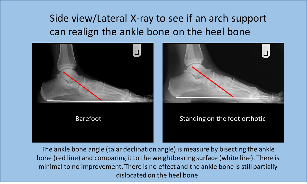 Side view/lateral x-ray to see if any arch support can realign the ankle bone on the heel bone