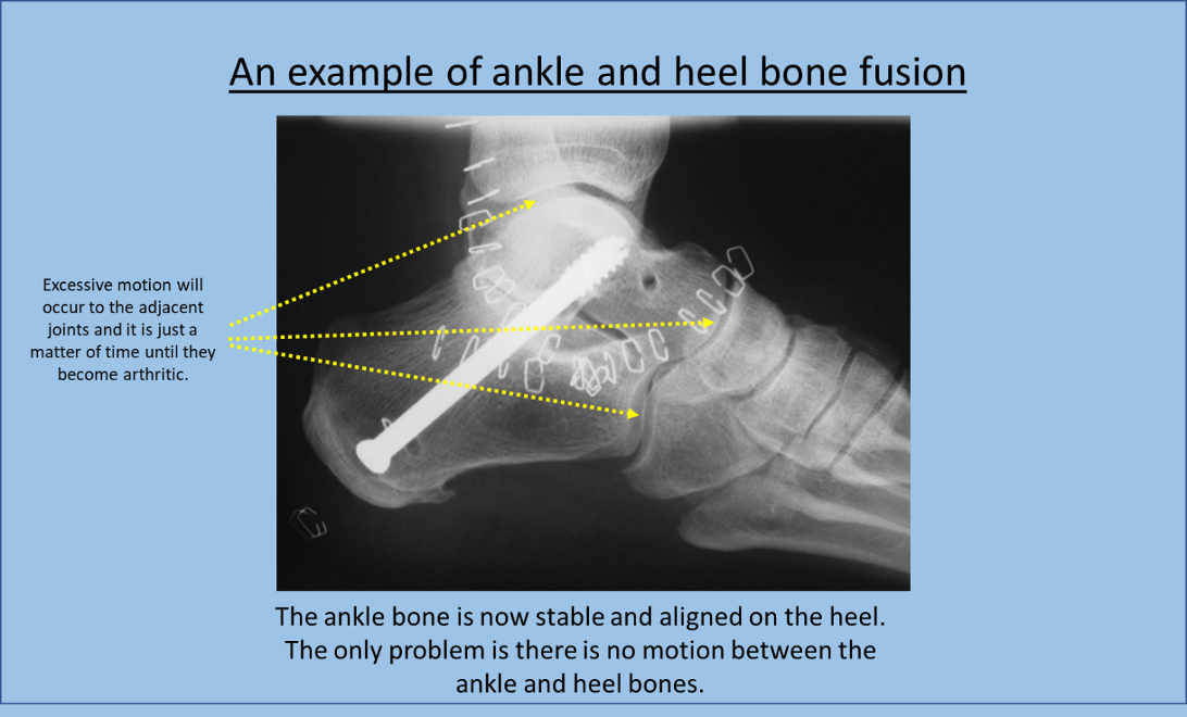 An Example of ankle and heel bone fusion