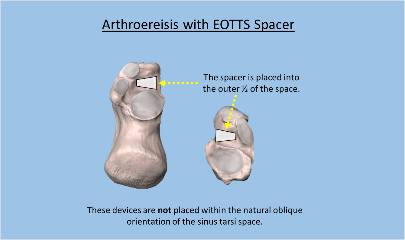 Arthroereisis with EOTTS spacer