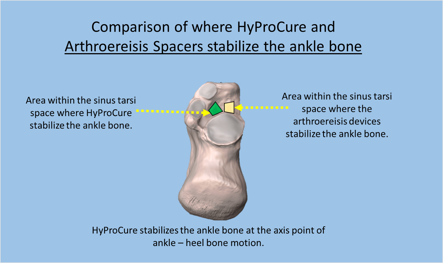 Comparison of where HyProCure and arthroereisis spacers stabilize the ankle bone