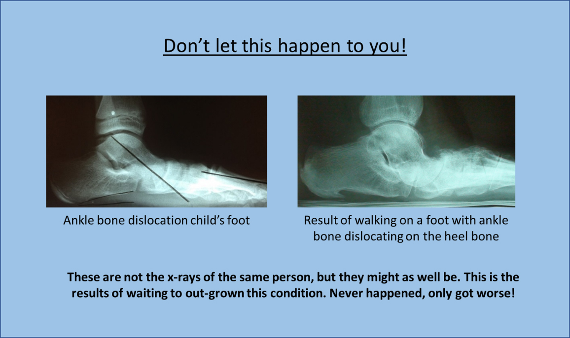 Side view x-ray - ankle bone dislocation child's foot compared with result of walking on a foot with ankle bone dislocating on the heel bone
