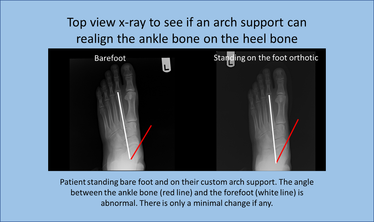 Patient standing bare foot and on their custom arch support. The angle between the ankle bone and the forefoot is abnormal. There is only a minimal change if any.