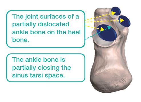 Partial dislocation of the ankle bone shifts the weightbearing forces forward and inward.