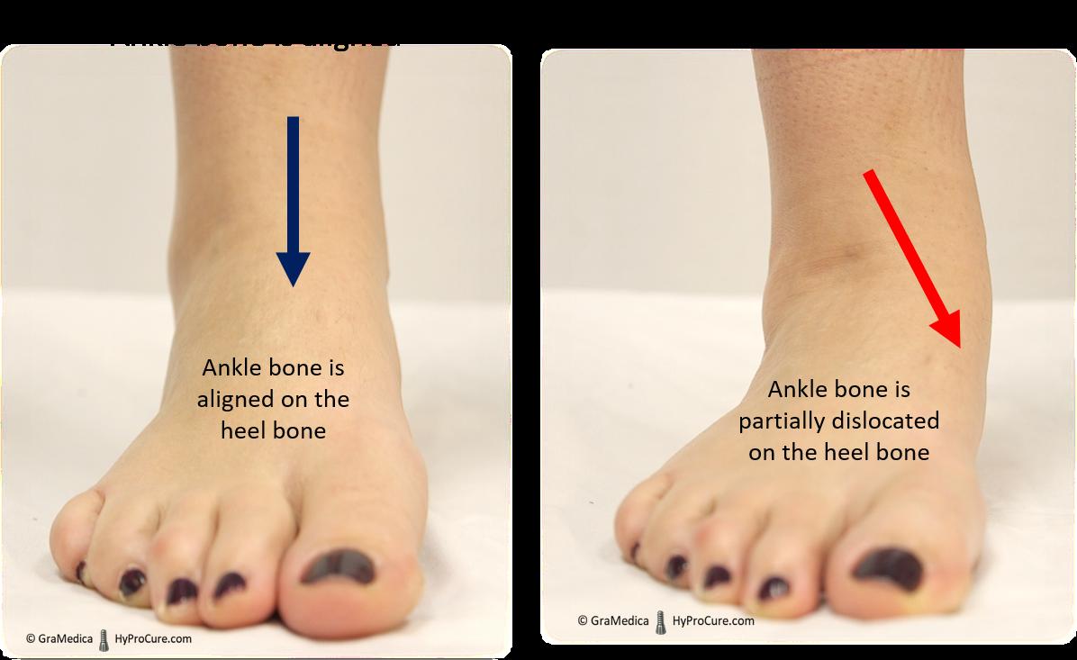 What do misaligned feet look like?